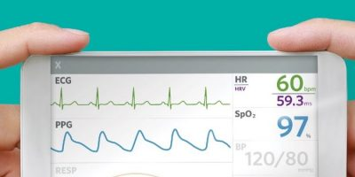 Biosensor module integrates PPG and ECG for mobile use
